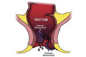 Can Hemorrhoids Cause Gas and Bloating?