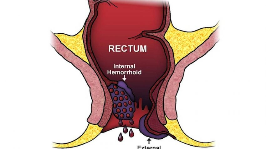 can hemorrhoids cause gas and bloating